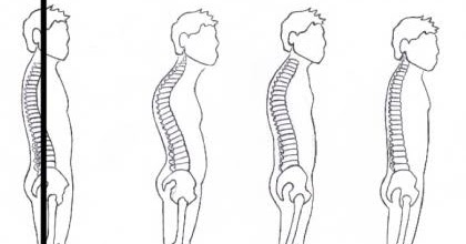 Fitness Grace Blog: Which Posture Type Do You Have?