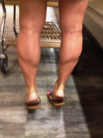 Shapely CALF MUSCLE