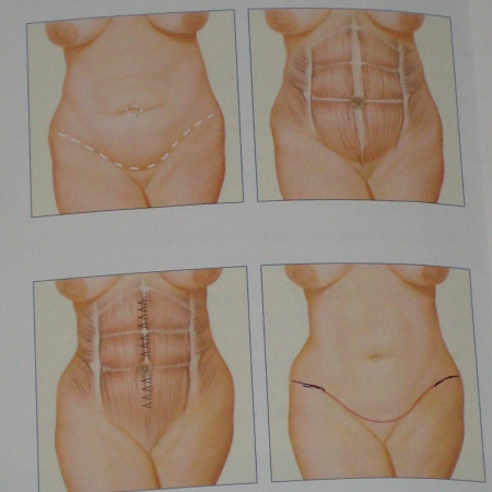 tummy tuck pamphlet