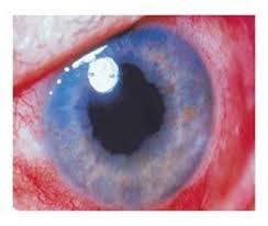 GLAUCOMA – căn bệnh giấu mặt