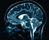 Traumatic Brain injury and late-life Parkinson's
