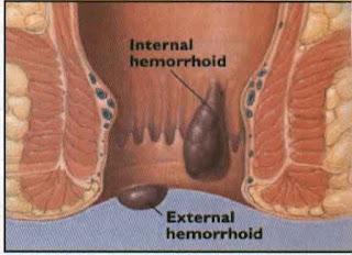 Mengatasi Hemoroid Sudah Parah, Artikel Obat Tradisional Wasir atau Ambeien, Cara Ampuh Mujarab Mengobati Penyakit Wasir Parah