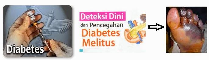 Cara Mengobati Dan Mencegah Penyakit Diabetes