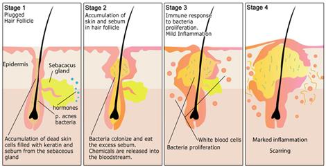 jerawat,acne,penyebab jerawat,kenapa jerawat tumbuh