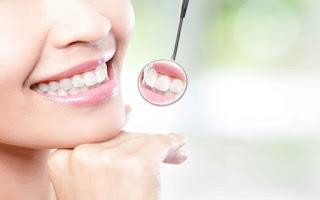 Cara Cepat Memutihkan Gigi Dengan Garam