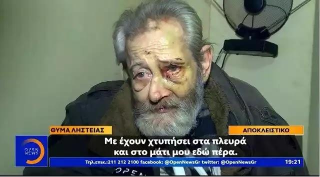 Ελλάδα 2020: Αδίστακτοι ληστές έδειραν άσχημα ηλικιωμένο χωρίς έλεος στα Πατήσια