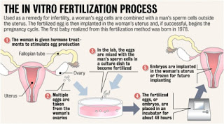 In Vitro Fertilisation Process