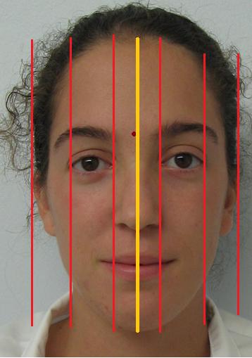 Dentistry: Facial Analysis