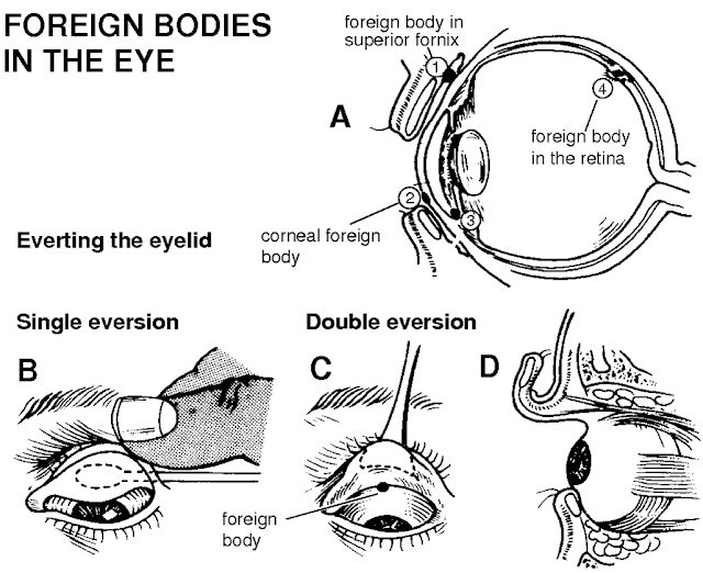 Foreign body in the eye