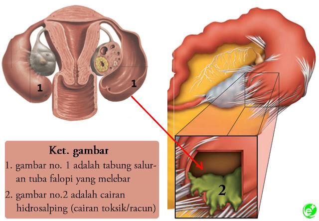 Cairan Hidrosalping, cairan toksik yang meracuni janin