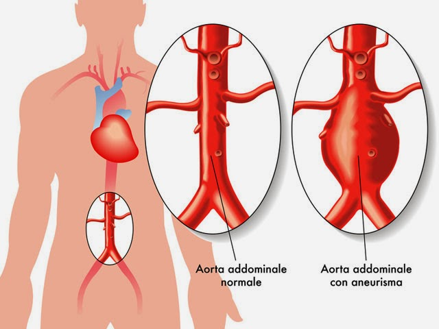 Hasil gambar untuk Penyakit Pembuluh Darah Perifer