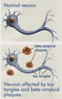 """Beta Amyloid Plaques >> All Behaviour Is Meaning """"Full"""": Alzheimer's Disease: A ..."""