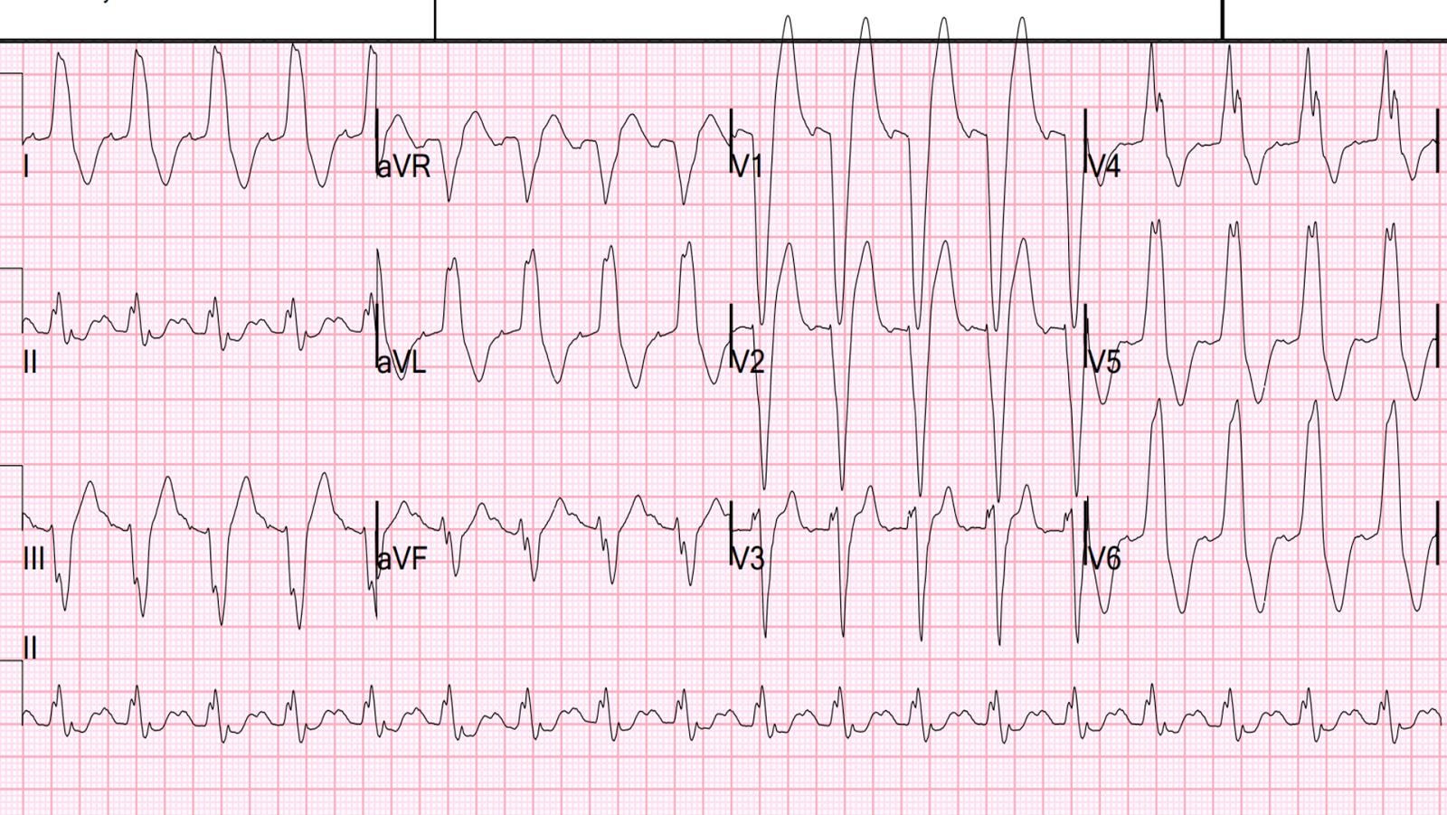 Dr Smith S Ecg Blog Acute Pulmonary Edema Respiratory Failure