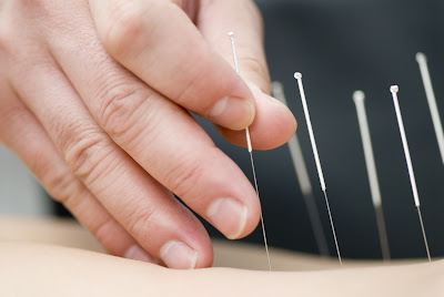 Other Alternative Treatment Options for DDD - El Paso Chiropractor