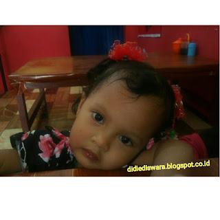 10 ciri ciri pada anak yang cacingan beserta pencegahannya