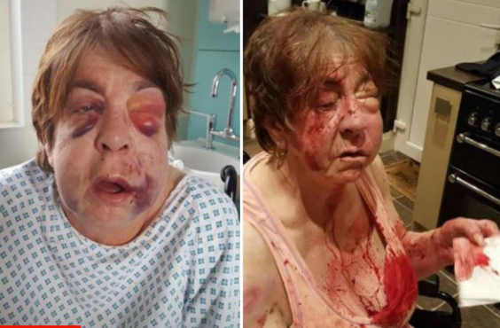 63 year old disabled grandma brutally beaten by thugs over her son's £100 cannabis debt
