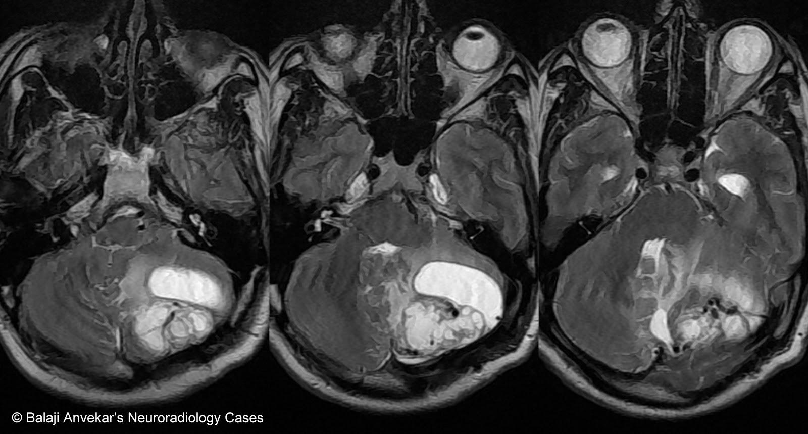 Hemangioblastoma MRI