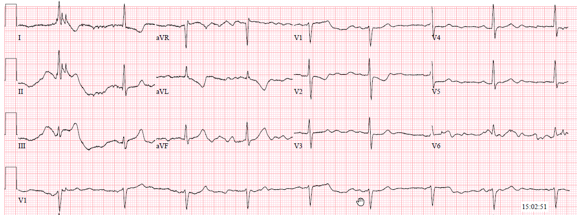 Dr  Smith's ECG Blog: March 2018