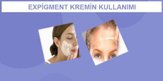 Expigment krem kullanımı