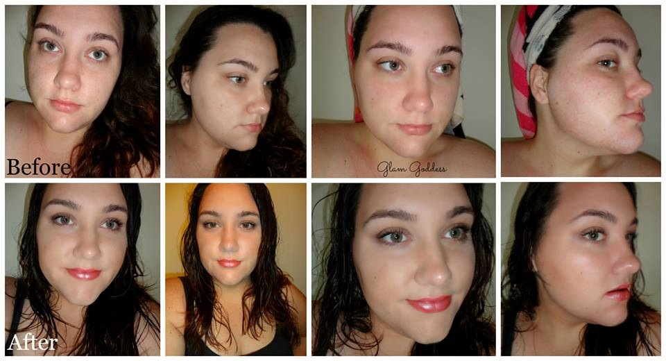 Miracle skin transformer before and after