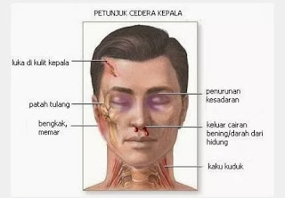Laporan Pendahuluan Cedera Kepala (Head Injury)