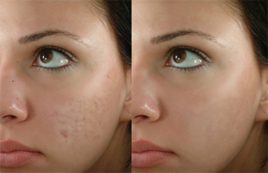 Removing Pimple and Blemishes Skin in Pixlr Editor