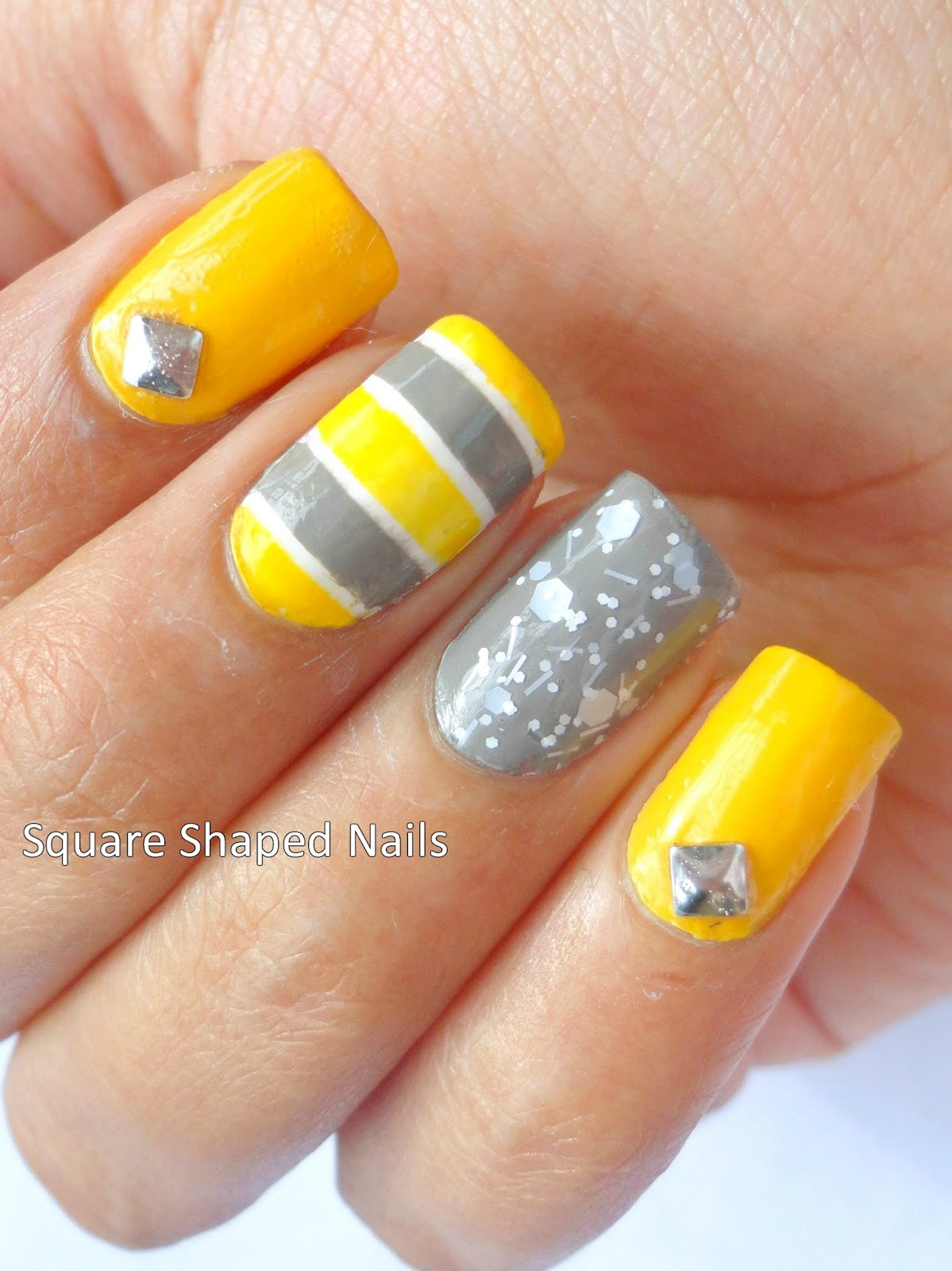 Yellow Toenails And Diabetes: Square Yellow Nails