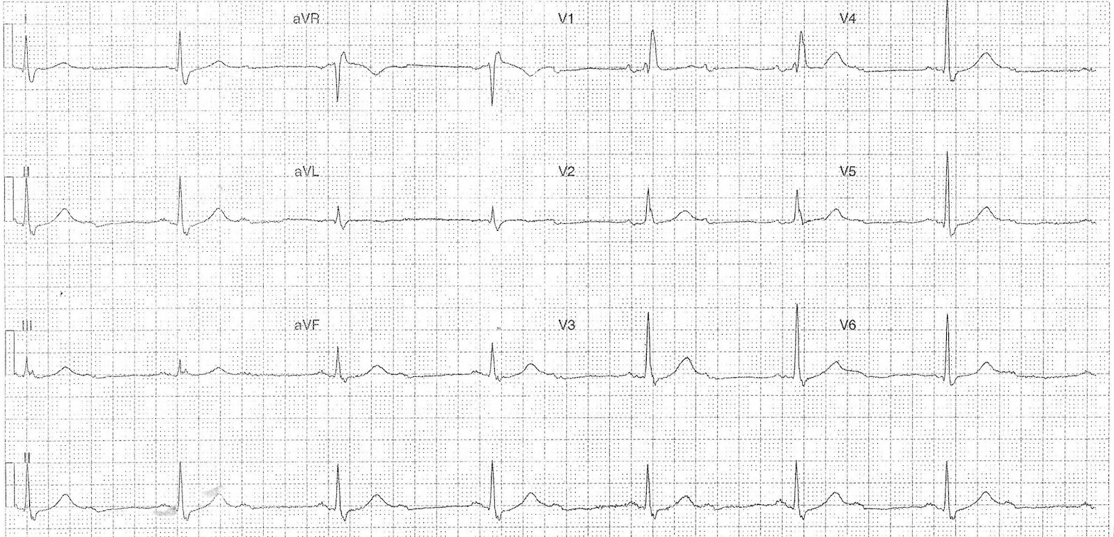 ecg of the week  u2013 foam em rss