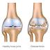 Cara Mengobati Pengapuran Tulang Lutut