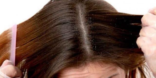 الشعر وجلد الشعر .