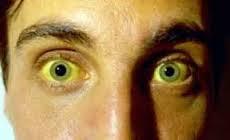 Inilah Dampak Bahaya Penyakit Kuning