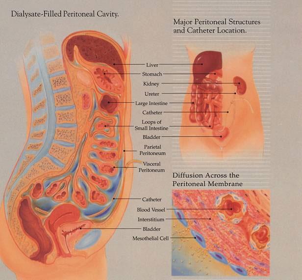 Peritoneum Abdominal Cavity