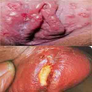 https://de-natur-indonesia.blogspot.com/2017/10/apa-penyebab-luka-bakar-di-vagina-dan.html