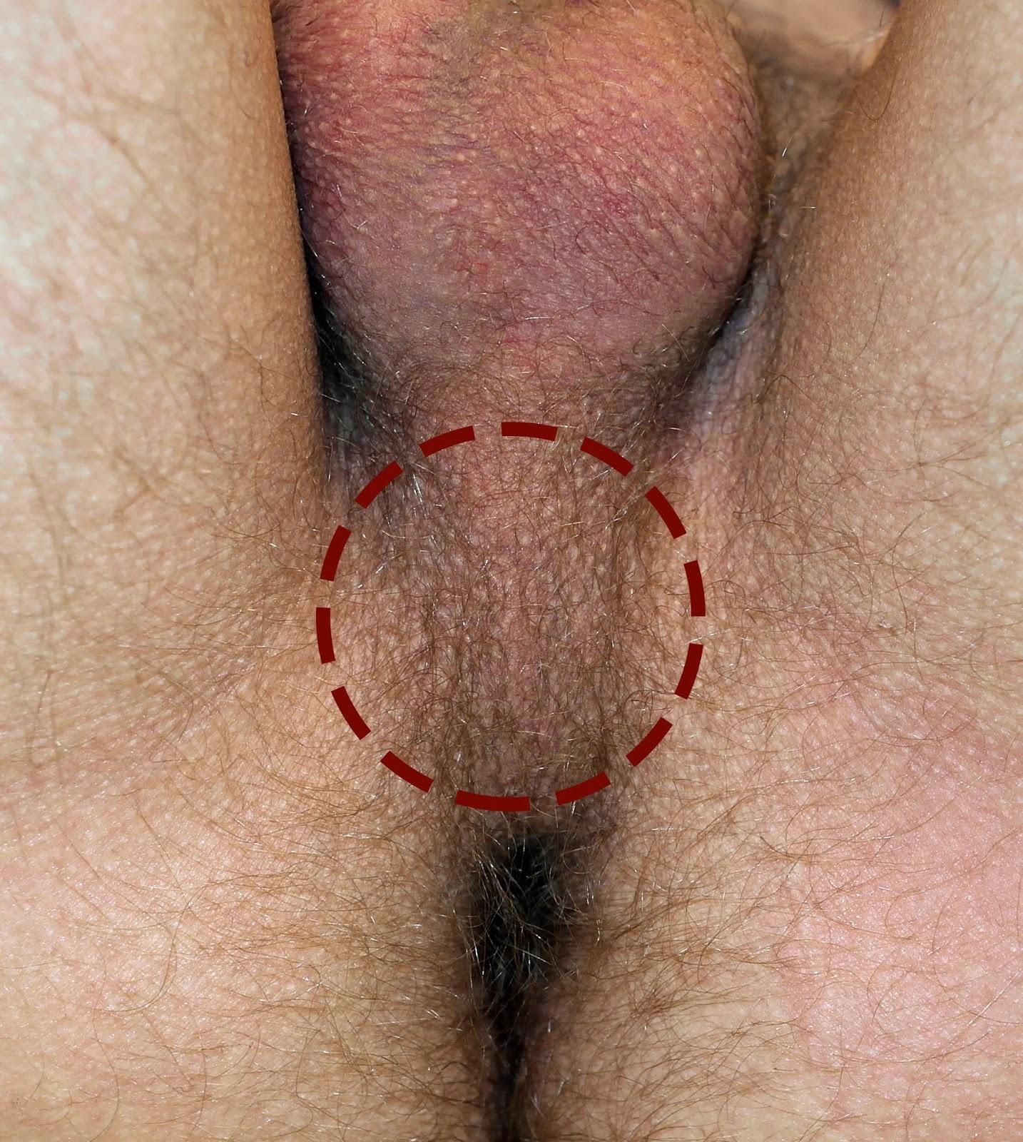 Ejaculação precoce - Como controlar?