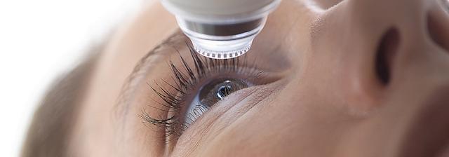 quelle operation pour  gérer la vue
