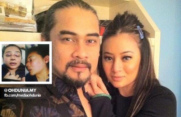 Akhirnya Mengaku Pukul Rozana, Awie Didenda RM2,000