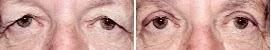 intervento occhi caserta
