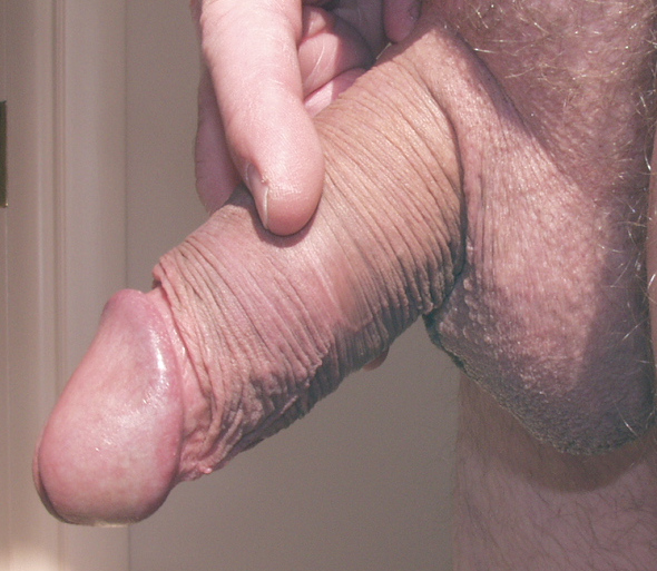 Retractable foreskin male