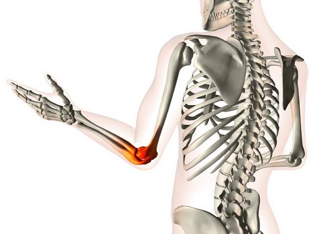 produsele naturale cu efect antiinflamator pot vindeca durerile articulare