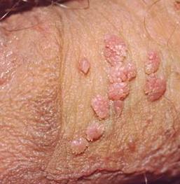 Gambar Penyakit Jengger Ayam Pada Wanita
