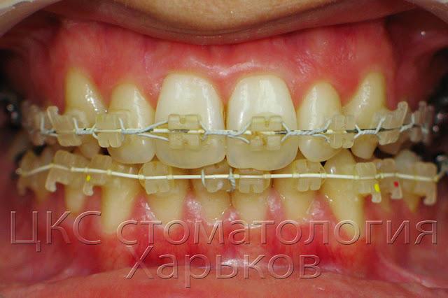 срок службы брекетов верхней челюсти 6 месяцев нижней 4 дня