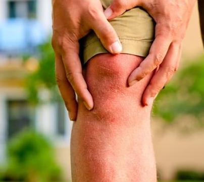 Jenis Cedera Lutut yang Terjadi saat Melakukan Olahraga