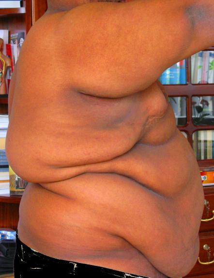 morbid obese sex pics