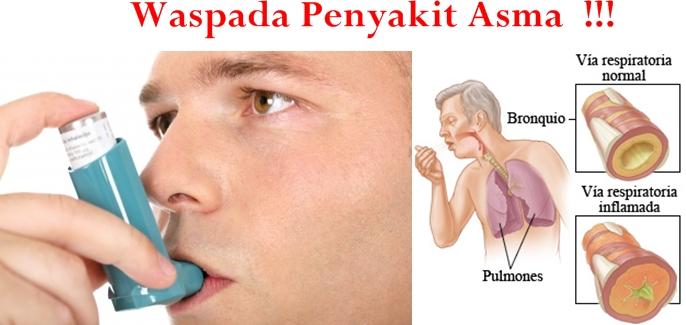 obat asma di apotik