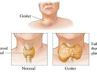 Bahaya benjolan di leher pertanda penyakit serius