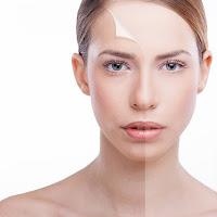 Botox e filler viso Juneco