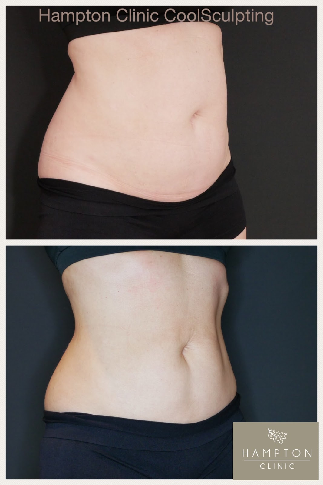 before and after photos \ coolsculpting \ side profile
