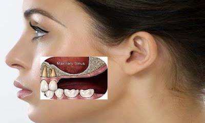 trồng răng cấm bằng phương pháp cấy ghép Implant -6