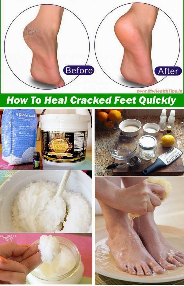 วิธีรักษาส้นเท้าแตก