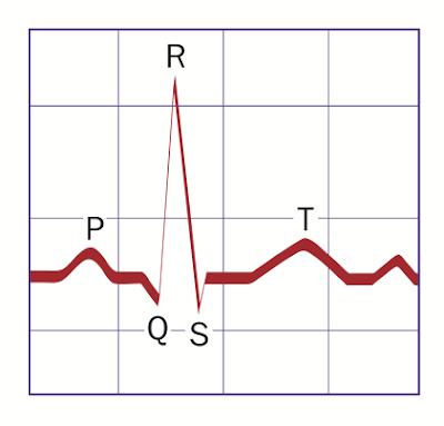 Gelombang EKG 12-Lead